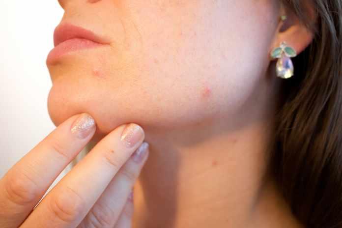 Natural Remedies For Irritated Skin
